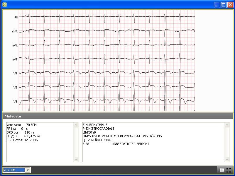 Full ECG support